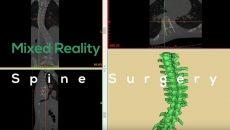 O HoloLens está sendo usado por cirurgiões brasileiros